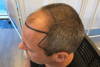 how-long-does-fue-hair-transplant-take-to-heal-min.png
